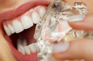 Izbelite zube