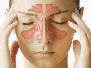 rešenje za bolne sinuse